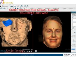 6. Alignment of Face Scan